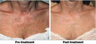 IPL_Pigmentation_Chest_Before_After