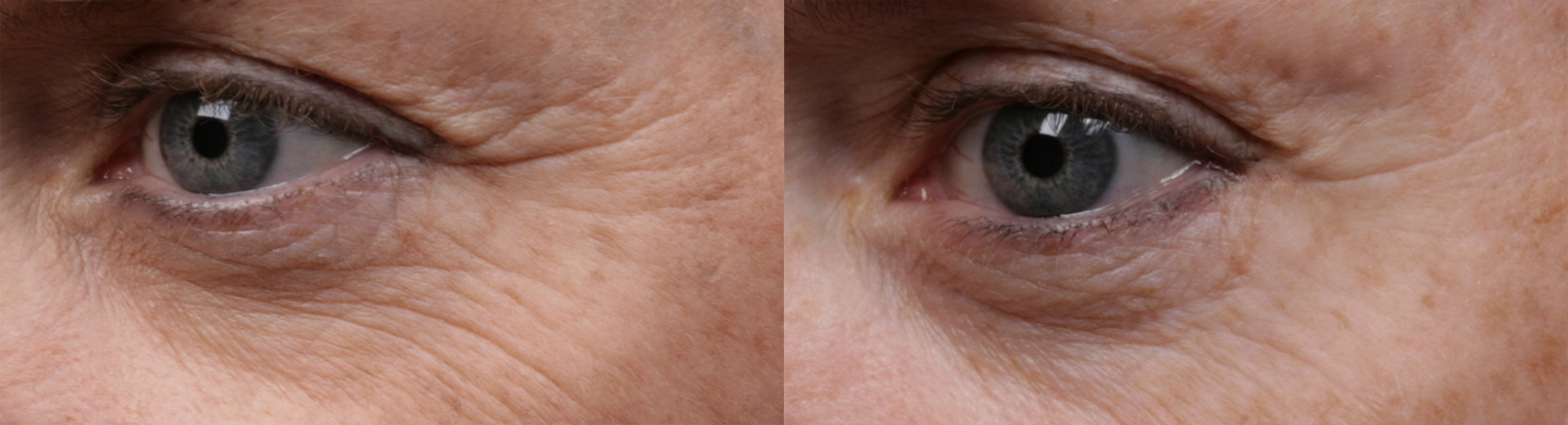SilcSkin_Eyes_before_and_after