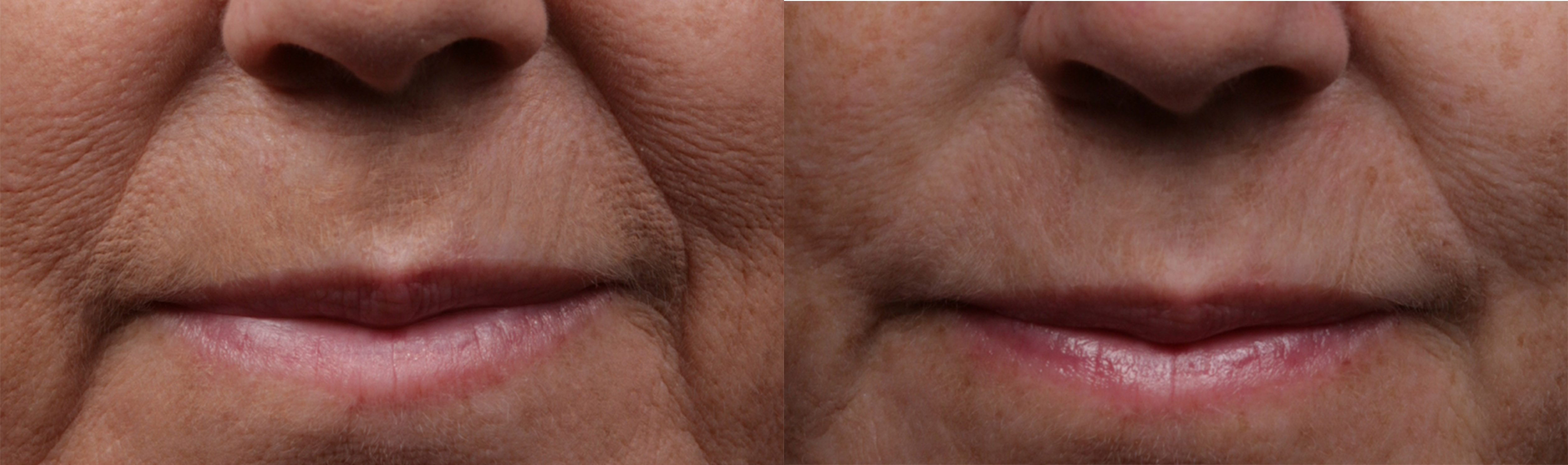 SklcSkin_Mouth_area_before_and_after