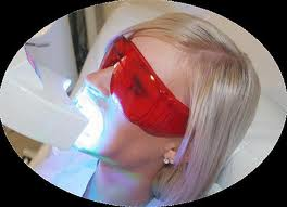 Teeth_Whitening_Machine
