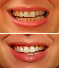Teeth_before_and_after_2